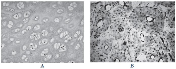 Porównanie morfologii i fizjologii tkanki chrzęstnej i kostnej.