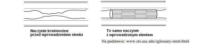 Mechanizm działania stentów.